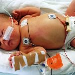 sick baby with medical tubes